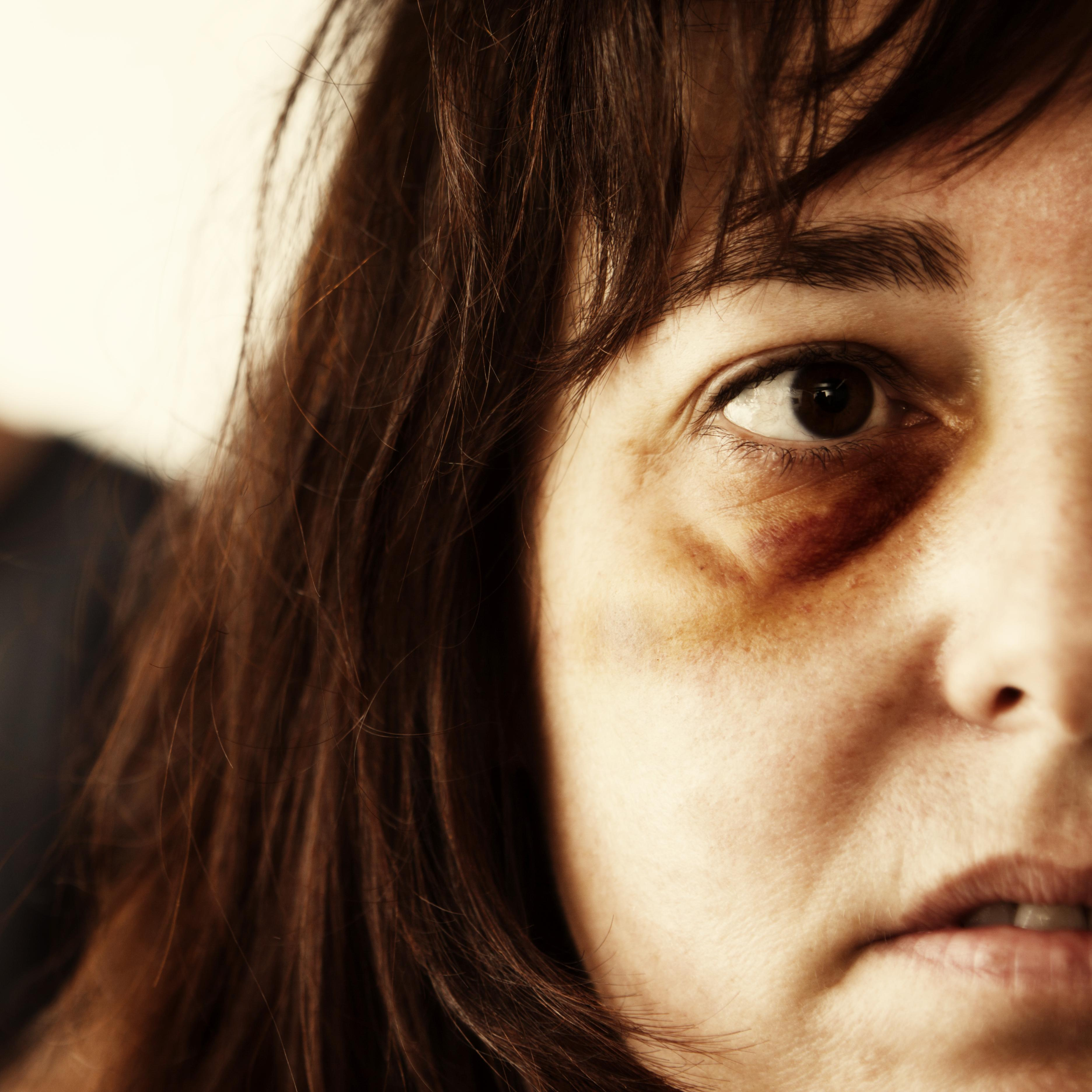 A woman with a bruised eye.